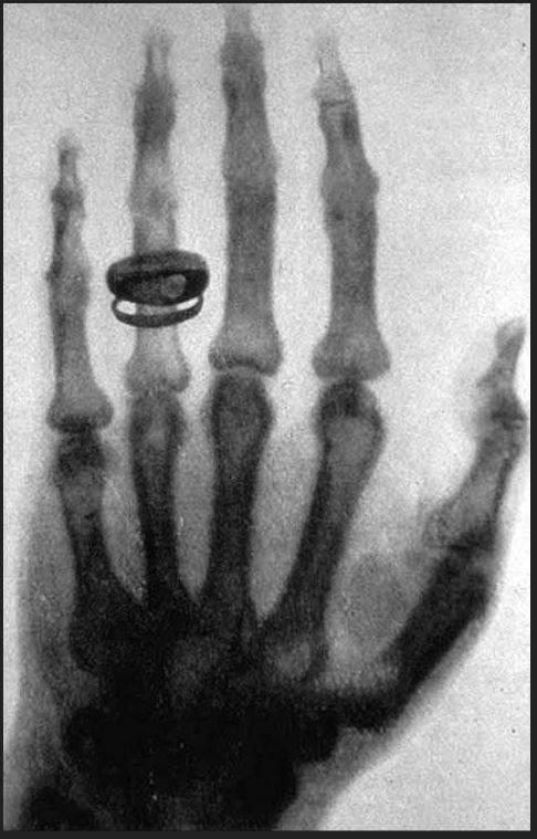 """""""Láttam a halált"""" – mondta Anna Bertha Röntgen, amint megpillantotta saját kezének csontvázát a legelső röntgenfelvételen • A történelmi kép Röntgen feleségének kezéről 1895-ben készült, 20 perces expozíciós idővel •  Forrás: Wikipédia"""
